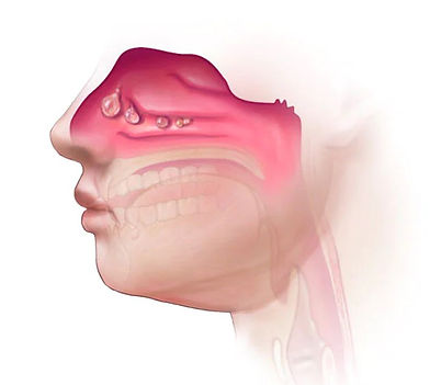 Pólipo Nasal | Otorrino BH