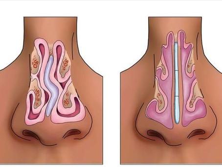 Desvio de septo cirurgia: Saiba mais sobre a cirurgia de septoplastia (cirurgia de nariz torto)