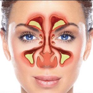 Infecções sinusais (Sinusite): as 5 principais perguntas respondidas