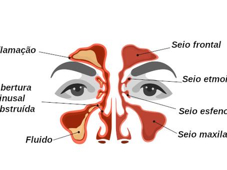 Entenda porque a sinusite causa perda de olfato e paladar