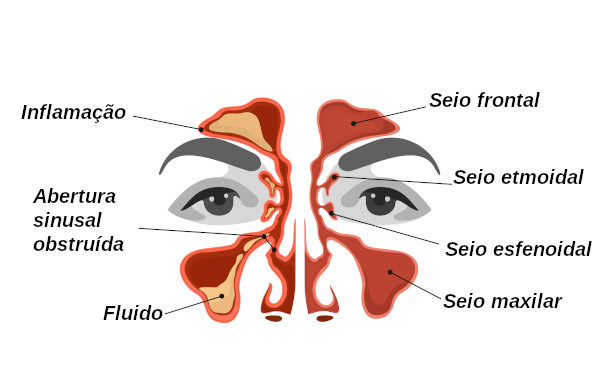 Sinusite perde olfato e paladar
