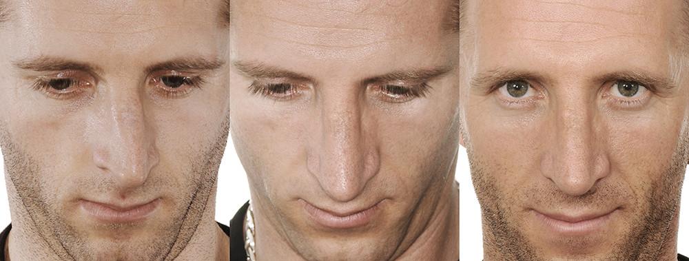 Rinoplastia antes e depois homem frontal