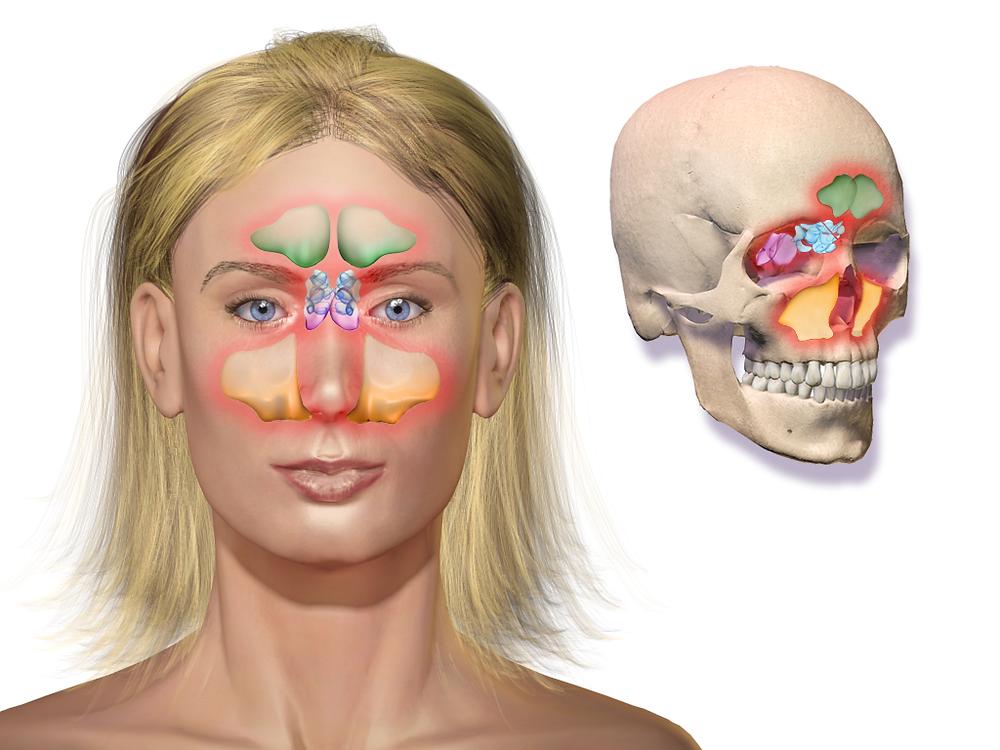 Sinusite crônica | Causas, sintomas e tratamento
