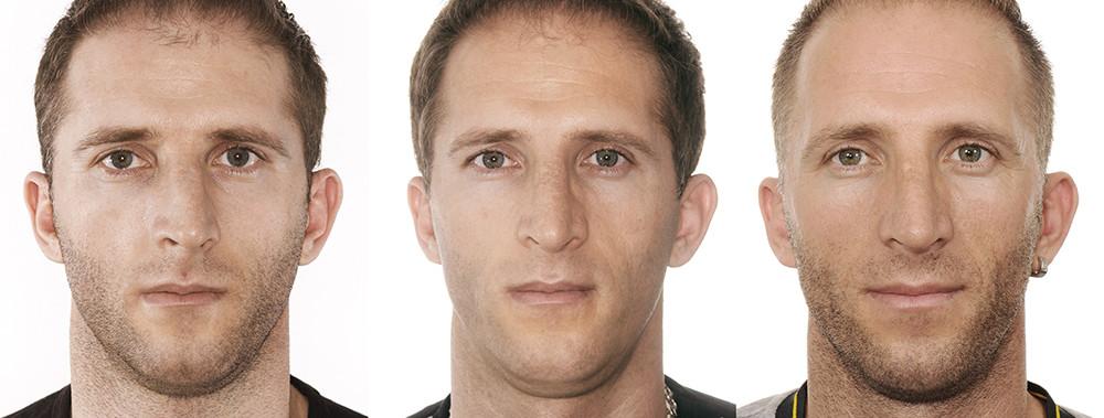 Rinoplastia antes e depois homem frontal distante