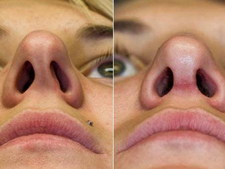 Septoplastia antes e depois: o que esperar?