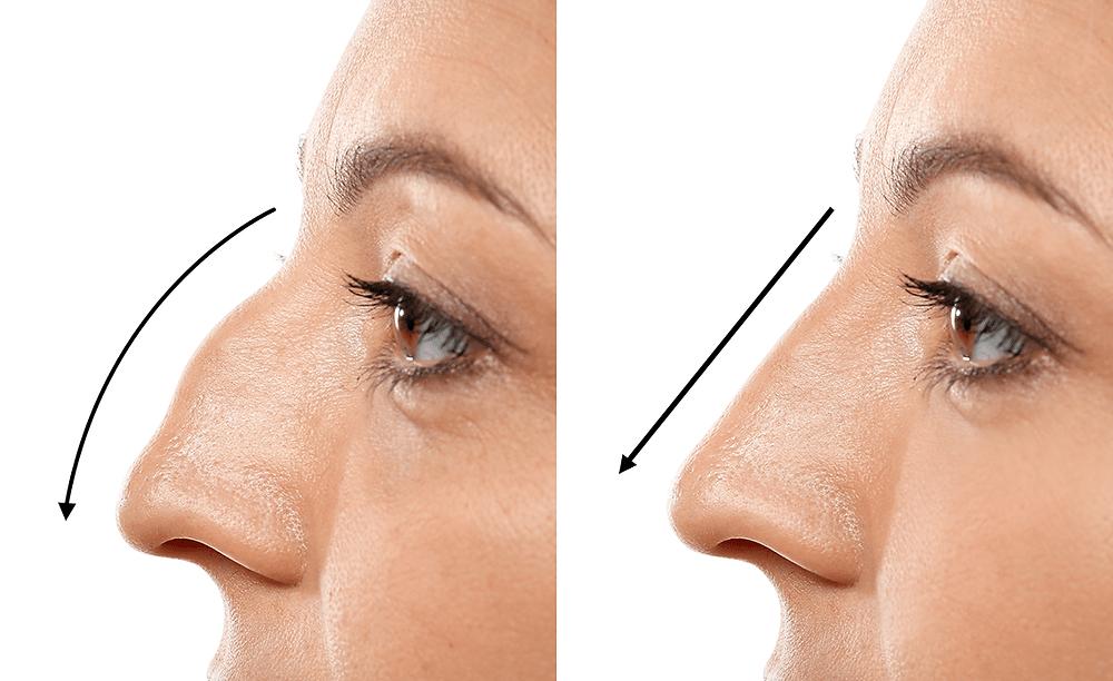 Otorrino BH | Cirurgia Nariz