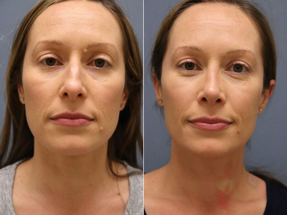 Remodelagem do nariz (rinoplastia) antes e depois, frontal