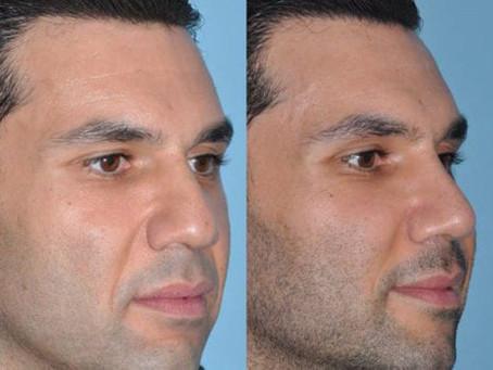 Rinoplastia masculina: como é a cirurgia plástica para homens?