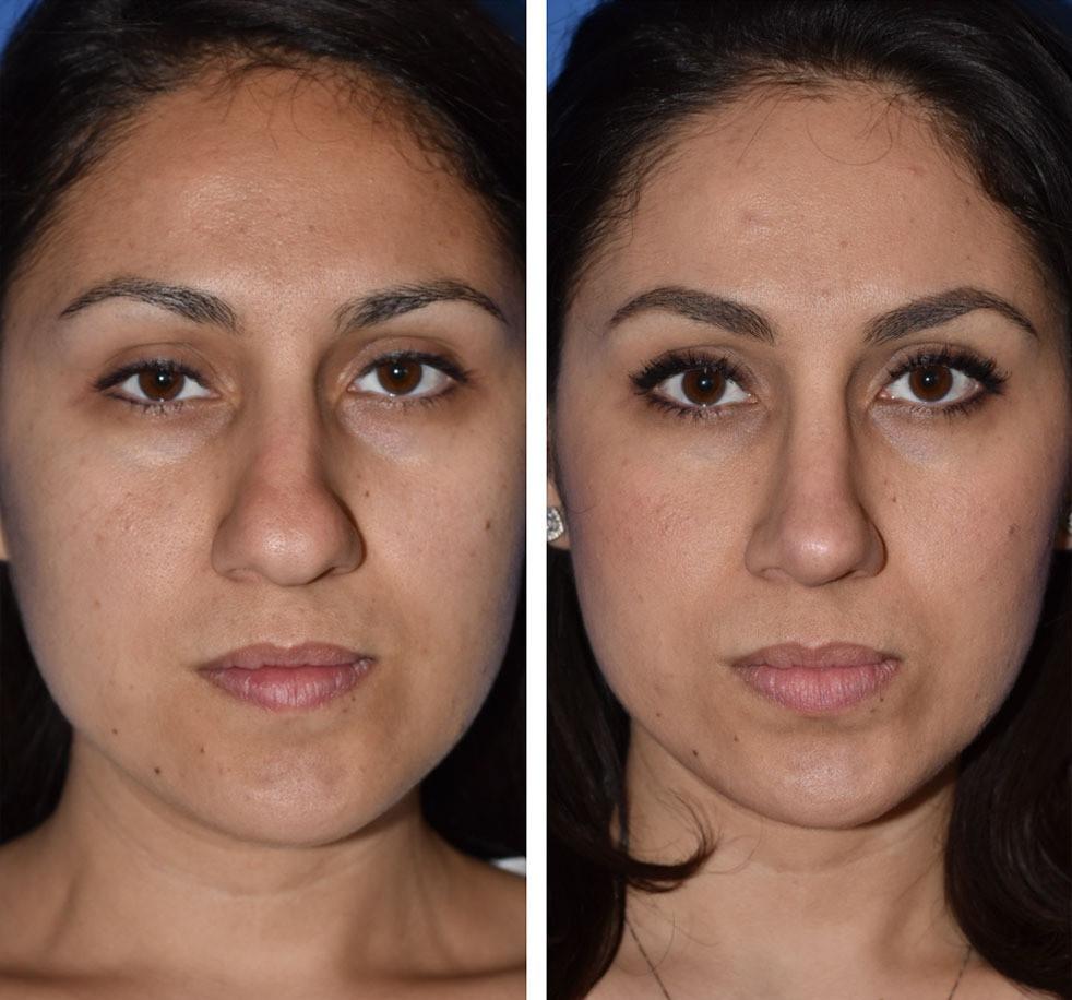 Rinoplastia antes e depois nariz de batata - lateral