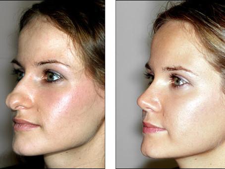 Rinoplastia antes e depois nariz de batata: o que esperar?