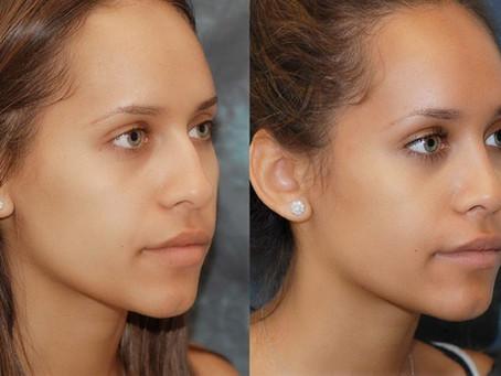 Rinoplastia para nariz negroide: Saiba tudo sobre a rinoplastia de correção de nariz negroide