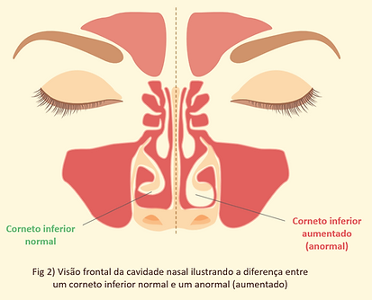 Turbinectomia ou Turbinoplastia