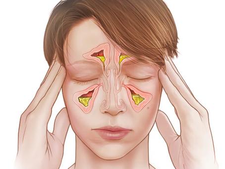 Entenda quais são os principais sintomas de sinusite