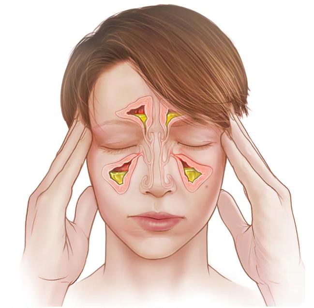sinusite sintomas