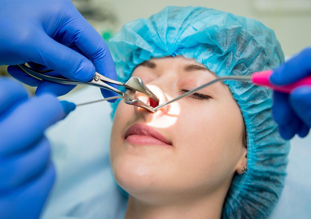 Otorrinolarigologista rinologista