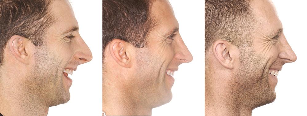 Rinoplastia antes e depois homem lateral sorrindo