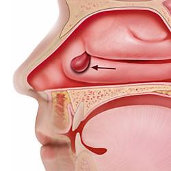 Polipose nasal: Causas, sintomas e tratamento
