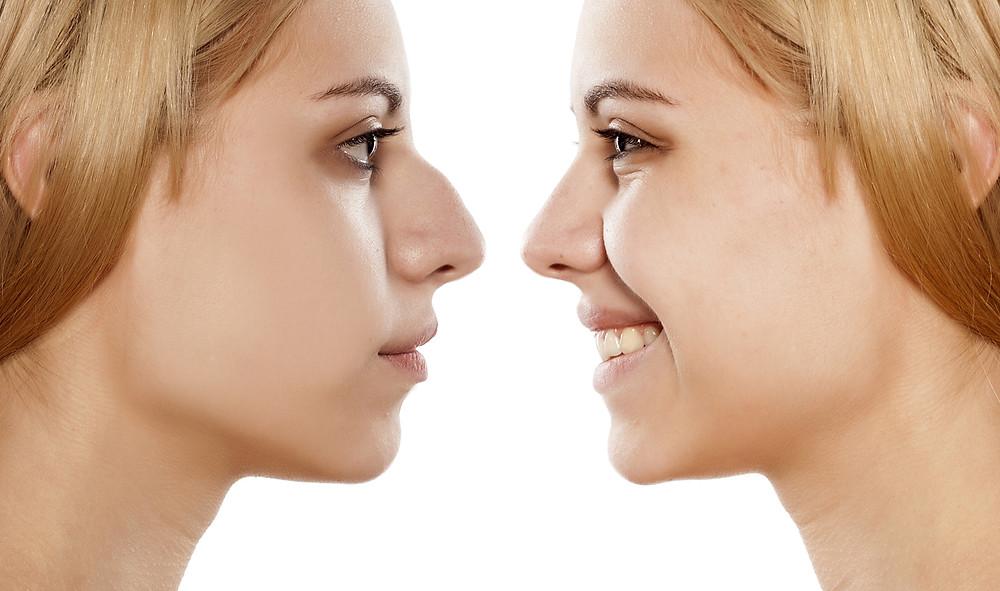 Cirurgia no nariz