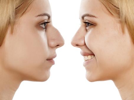 Cirurgia para diminuir o nariz: Entenda como é a rinoplastia para redução do tamanho do nariz