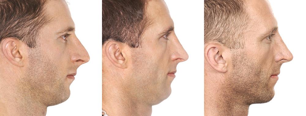 Rinoplastia antes e depois homem lateral