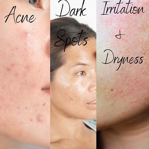Simplified Skincare Suites