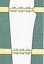 Alteraciones en el patrón del pantalón