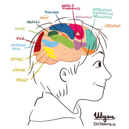 Vignette Cerveau d'un DYS