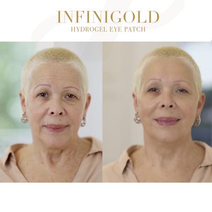 InfiniGold Antes y Después