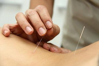 Tratamento-através-da-acupuntura_ES_Vito