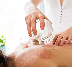 woman-cupping-patients-back.jpg