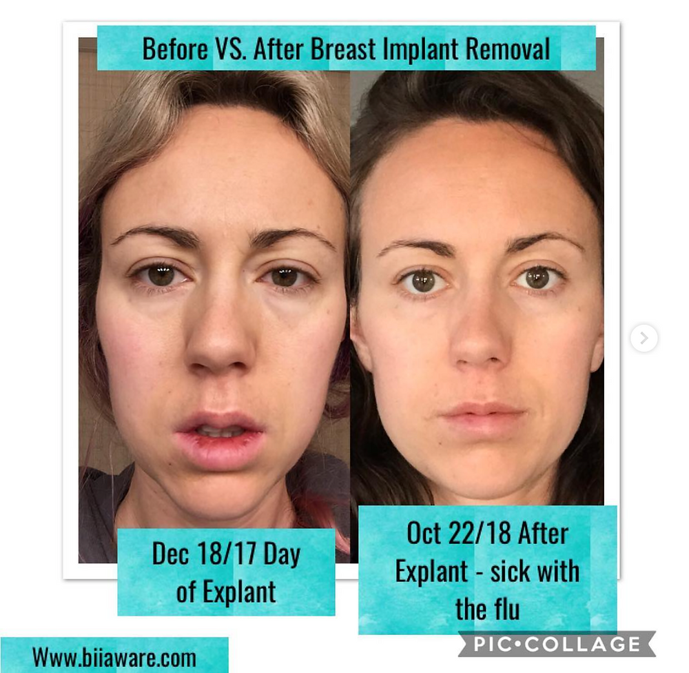 Before & After Explant with Capsulectomy Comparison (Breast Implant Removal)
