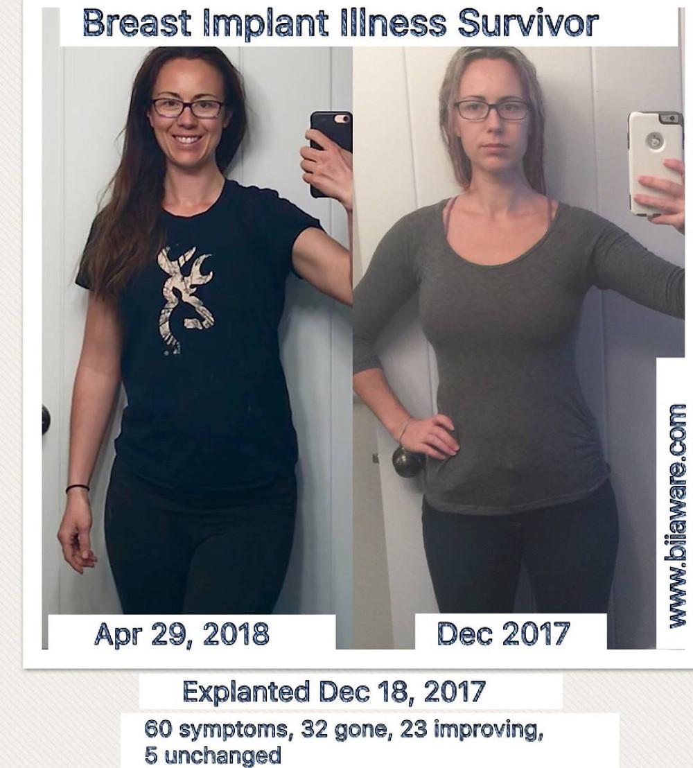 Breast Implant Illness Survivor - post explant healing