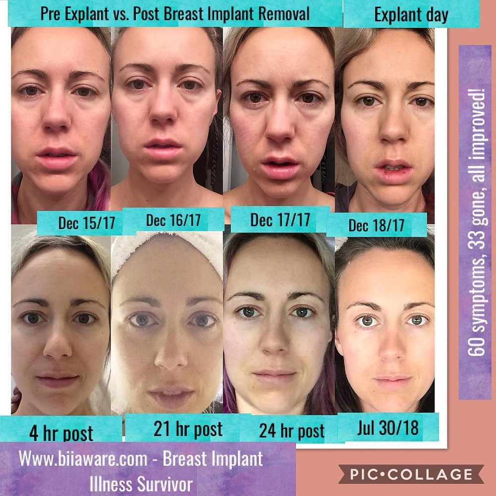 Before Explanting vs. After Breast Implant Removal Transformation - Healing Breast Implant Illness