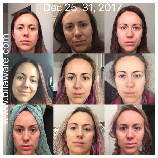 Face pictures Dec 25-31, 2nd week post breast implant removal - 2017