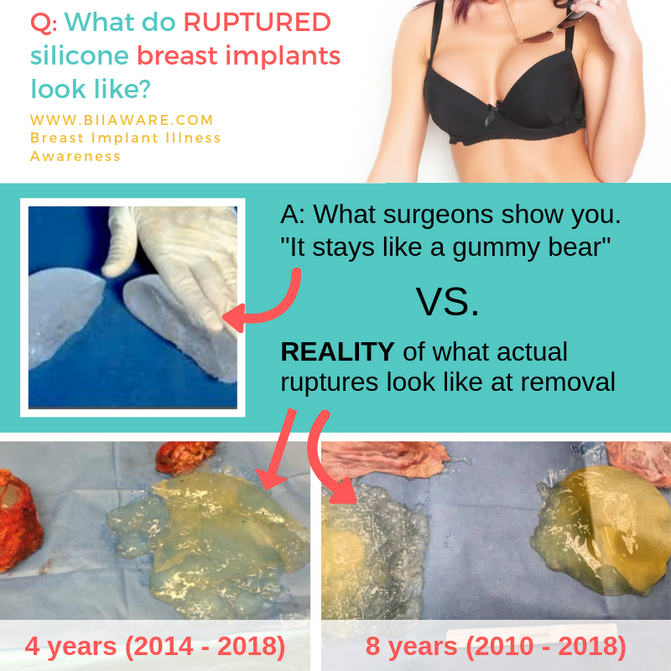 Breast Implant Ruptures, Marketing Expectations vs. Reality