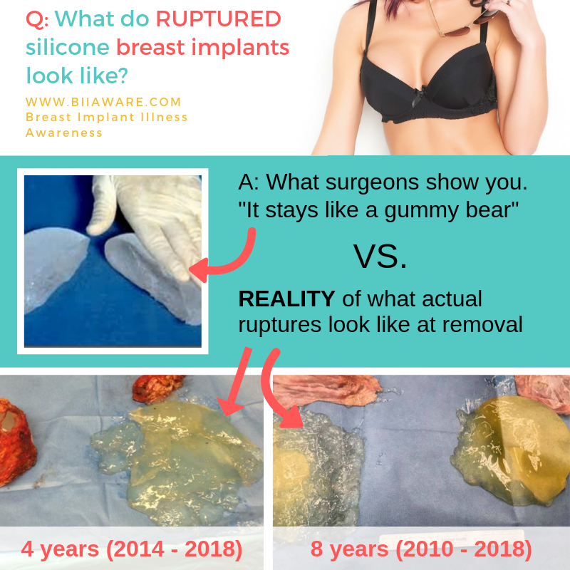 What do ruptured silicone breast implants look like? What you are told vs reality.