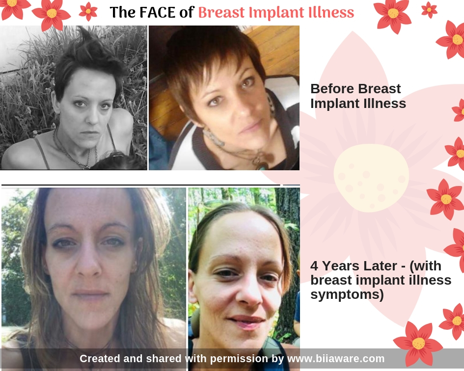 The face of Breast Implant Illness