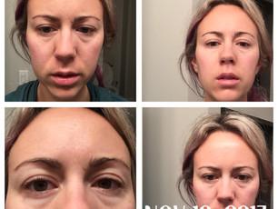 Symptoms Log - Nov 18-26, 2017