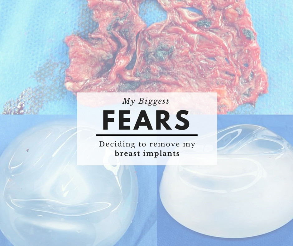 My Biggest Fears - Deciding to remove my breast implants
