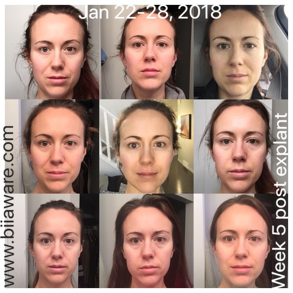 Jan 22-28, 2018 - face pictures of post explant