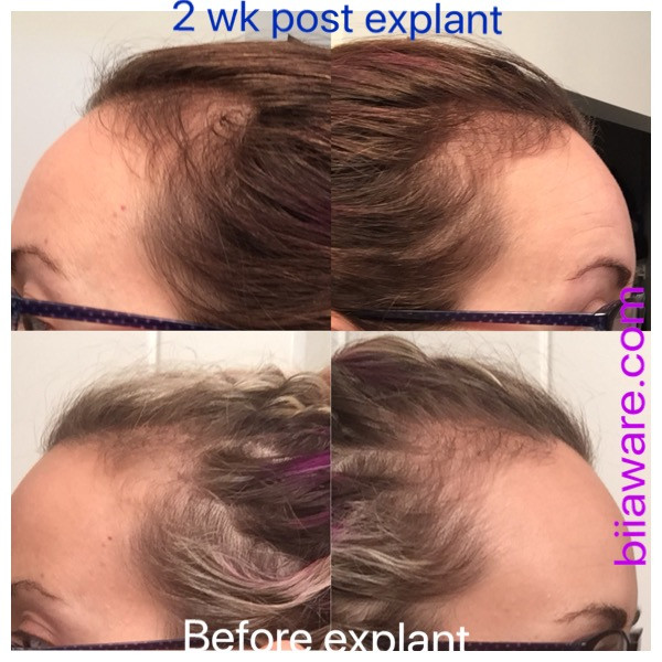 Hair re-growth at 2 weeks post breast implant removal - 2017