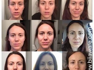 Symptoms Log - Jan 1 -7 (post explant)