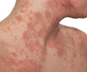 A patient in need of eczema treatment in Dallas.