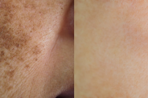 Hyperpigmentation Enzyme Therapy Facial