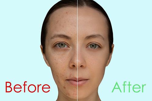 Chemical Peel Facial