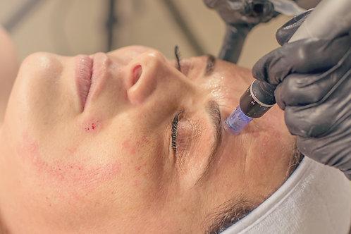 Micro-Needling Facial