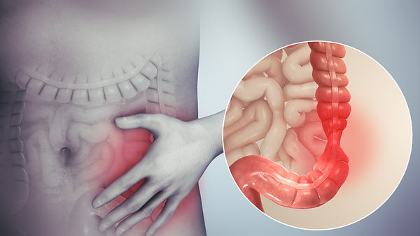Irritable_bowel_syndrome.jpg