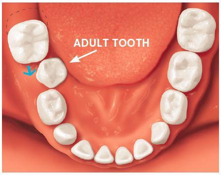 Babies Dental Carrier / Cavities