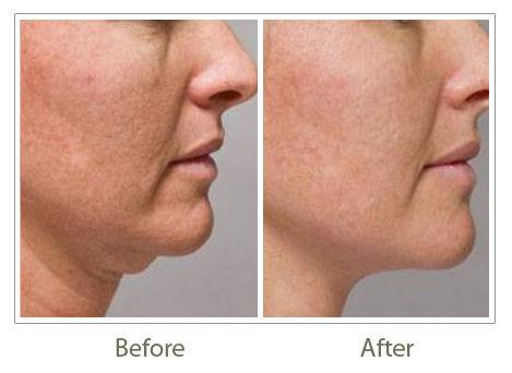 HIFU for skin tightening