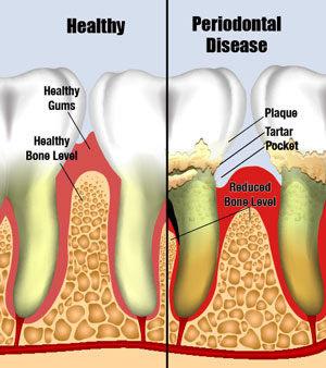 Gum Specialist / periodontics